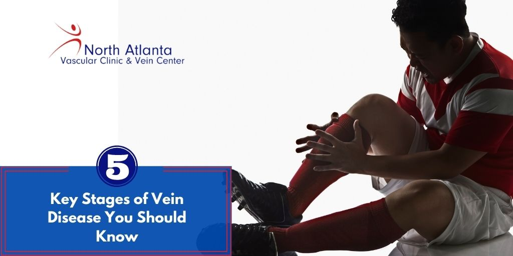 Five Key Stages of Vein Disease You Should Know