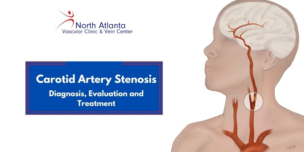 Carotid Artery Stenosis- Diagnosis, Evaluation and Treatment
