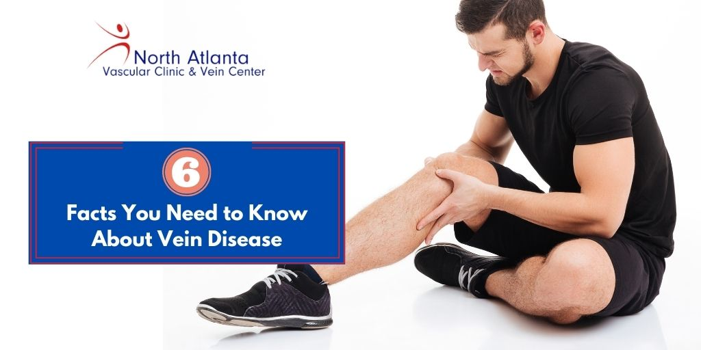 6 Facts You Need to Know About Vein Disease